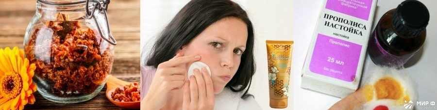 Прополис при кожных заболеваниях