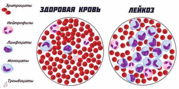 зараженный клетки лейкозом