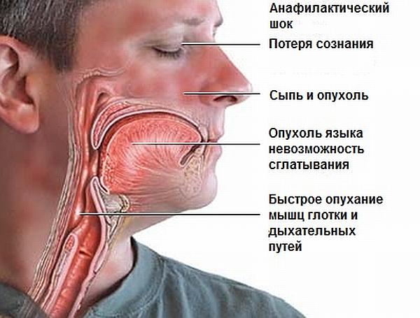 Опасные последствия аллергии