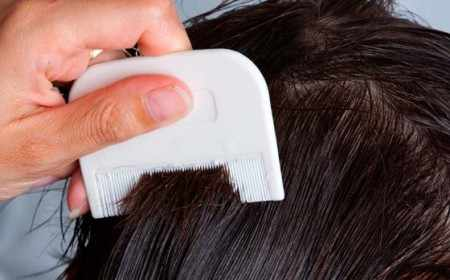 Вычесывание шерсти позволяет выявить блохи