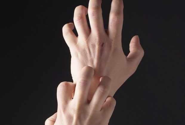 Зуд при аллергии - первый симптом