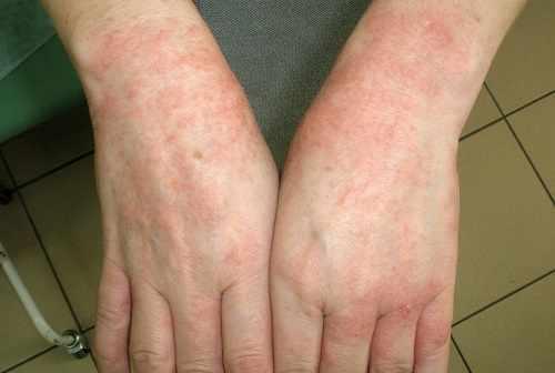 Проявления аллергии у взрослого