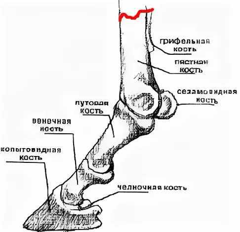 Виды переломов и прогнозы лечения